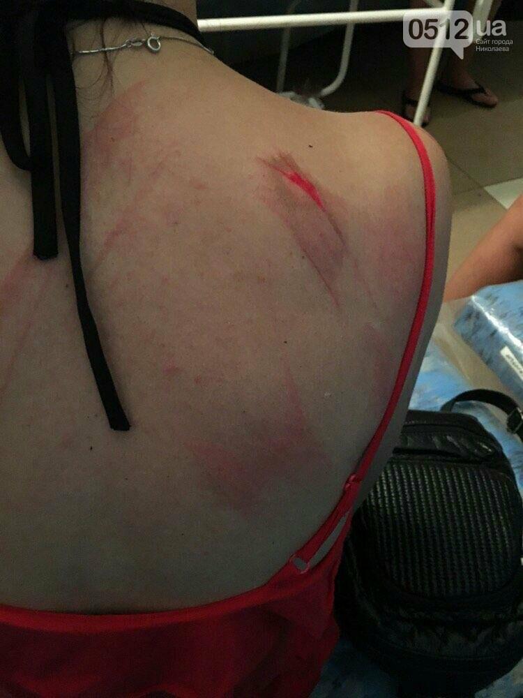 """На николаевском """"Бомбардире"""" отдыхающих накрыла деревянная беседка - есть пострадавшие, фото-1"""