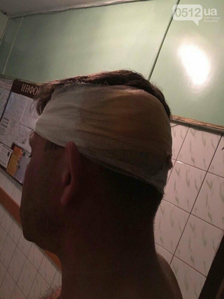 """На николаевском """"Бомбардире"""" отдыхающих накрыла деревянная беседка - есть пострадавшие, фото-2"""