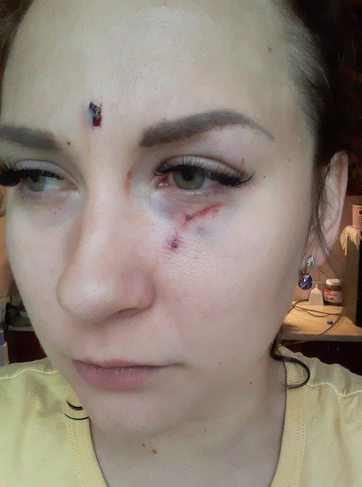 В Николаеве таксист избил девушку, узнав что она забыла кошелёк, фото-2
